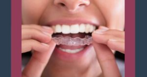 Close-up of someone putting aligner tray in mouth for Invisalign® treatment