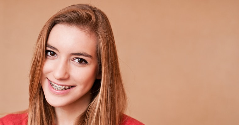 Damon Braces vs. Traditional Braces: What's the Difference?