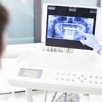 Patient and doctor looking at patient's dental x-rays to determineif Invisalign in the tri Cities is right for this patient.